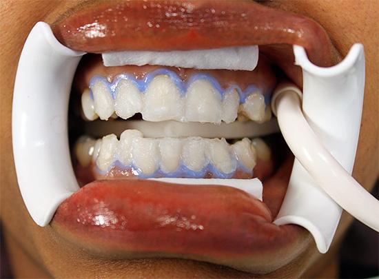 На фото показан пример химического отбеливания зубов в кабинете у стоматолога.