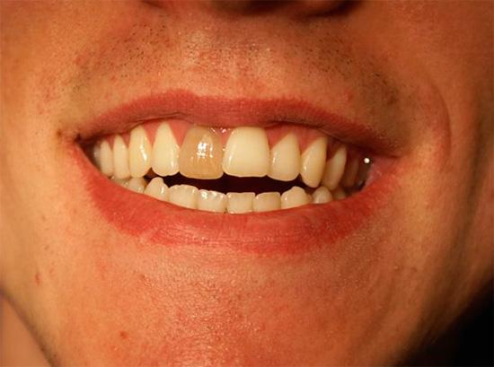 Фотография потемневшего мертвого зуба до процедуры отбеливания.