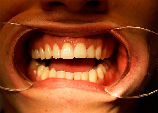 А так выглядит тот же зуб после эндоотбеливания.