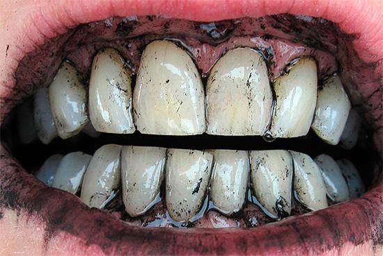 Отбеливание зубов активированным углем довольно редко бывает эффективным.