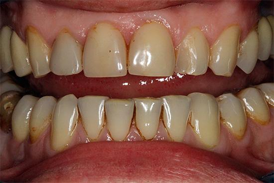 При обилии зубного камня и налета целесообразно будет провести профессиональную гигиену полости рта - это сразу же сделает зону улыбки белее.