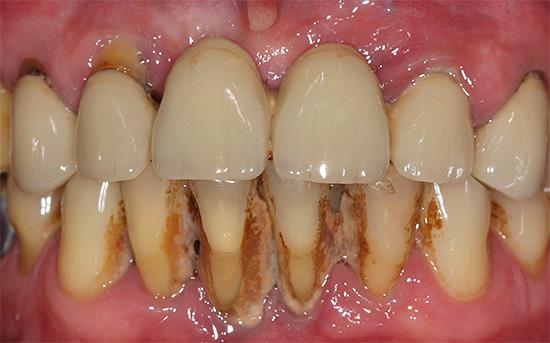 На фотографии показан пример обильного зубного камня на передних нижних зубах.