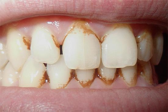 Такой вот налет отбеливающие зубные пасты из Тайланда действительно способны удалить довольно быстро.