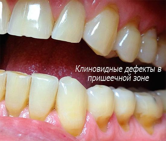 При наличии клиновидных дефектов применение отбеливающей зубной пасты с высокой абразивностью лишь усугубит ситуацию...