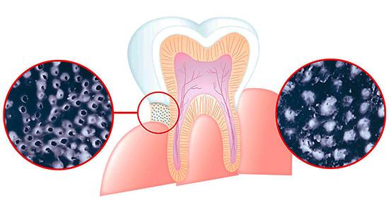 На картинке схематично показано, как соли стронция, кальция и фториды способны снижать чувствительность зубов, закупоривая дентинные канальцы.