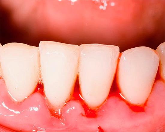 Особенно популярны зубные пасты Поморин как средство борьбы с воспалением десен и их кровоточивостью.