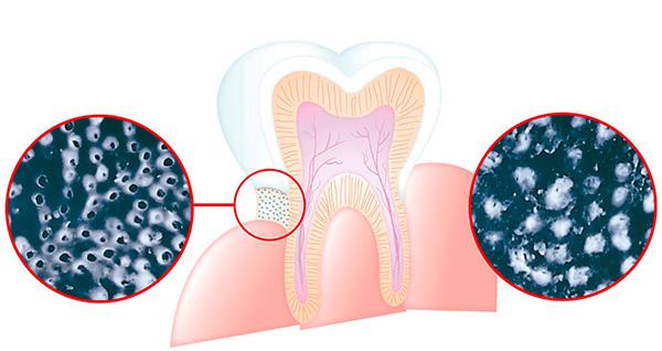 На картинке показано, как именно ацетат стронция способствует снижению чувствительности зубов.