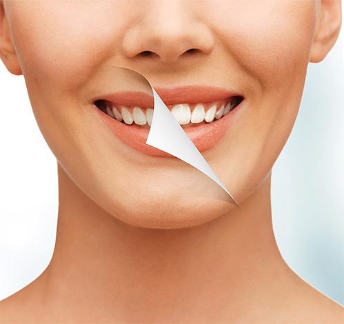 Как безопасно отбелить зубы с минимальным вредным воздействием на эмаль, и вообще, возможно ли это - попробуем разобраться в данной теме подробнее...