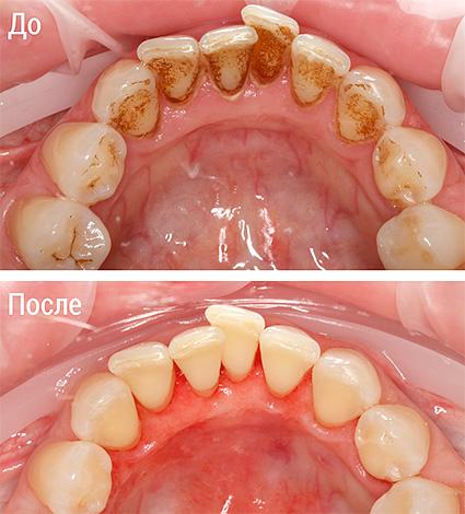 На фото показан внешний вид зубов до и после процедуры Air Flow.