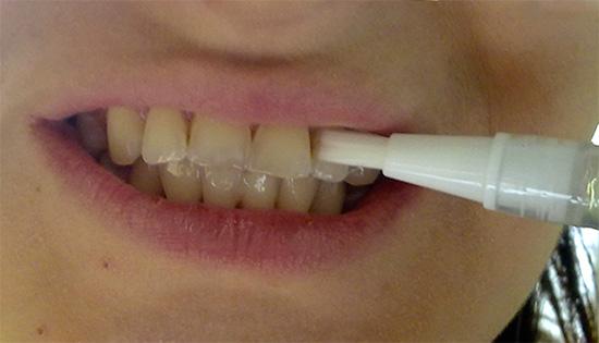 Пример нанесения геля из отбеливающего карандаша на зубы.
