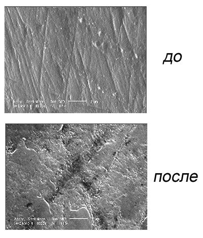 Фотографии поверхности зубной эмали под микроскопом до процедуры химического отбеливания и после нее.