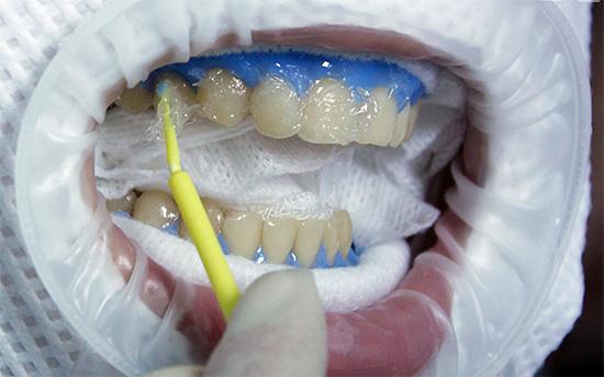 Истинное отбеливание зубов предполагает химическое разрушение окрашенных соединений, входящих в структуру поверхностного слоя эмали.