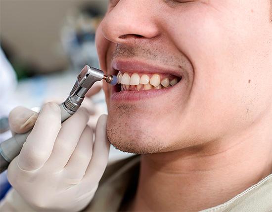 Механическое отбеливание зубов правильнее назвать осветлением - при этом удаляются лишь окрашенные отложения с поверхности эмали.