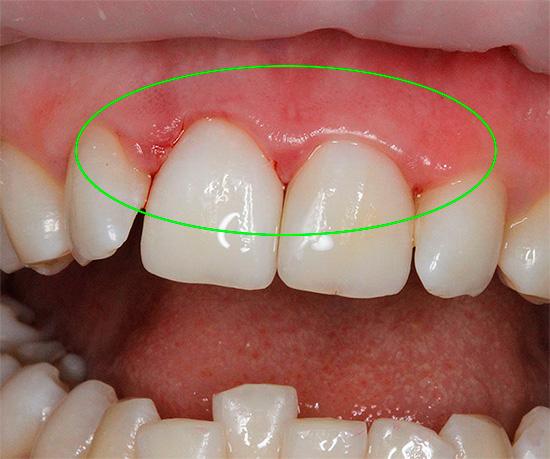Попытки отбелить зубы в домашних условиях далеко не безопасны и нередко приводят к серьезным ожогам десен.