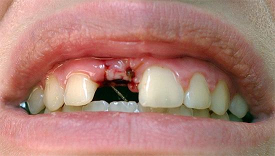 Иногда для полосканий ротовой полости после удаления зуба используются аптечные препараты на растительной основе - важно лишь их правильно выбрать.