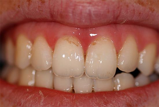 Отбеливающие пасты удаляют с поверхности эмали пигментированные отложения - за счет этого зубы и становятся визуально светлее.