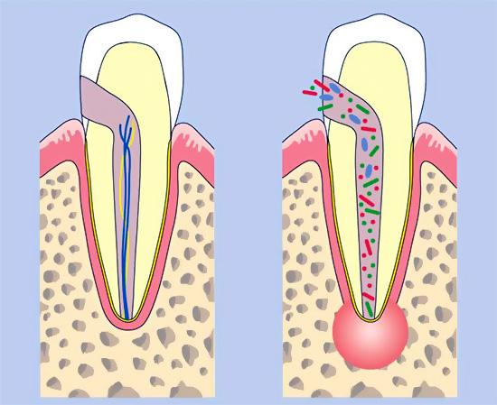 При пульпите или периодонтите теплый раствор для полоскания способствует оттоку гноя из очага воспаления.