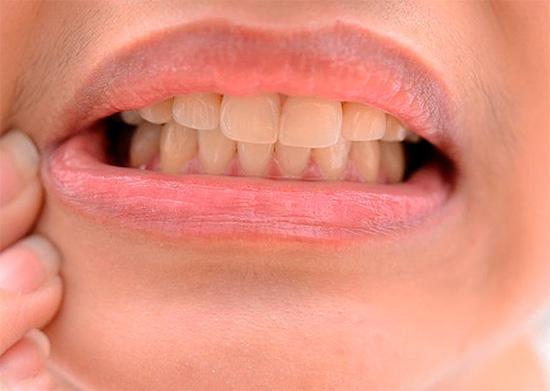 Есть немало способов снятия зубной боли в домашних условиях, однако далеко не все они одинаково эффективны и безопасны...