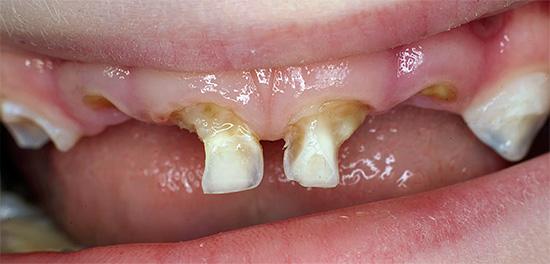 На фотографии показаны молочные зубы ребенка, разрушенные кариесом.