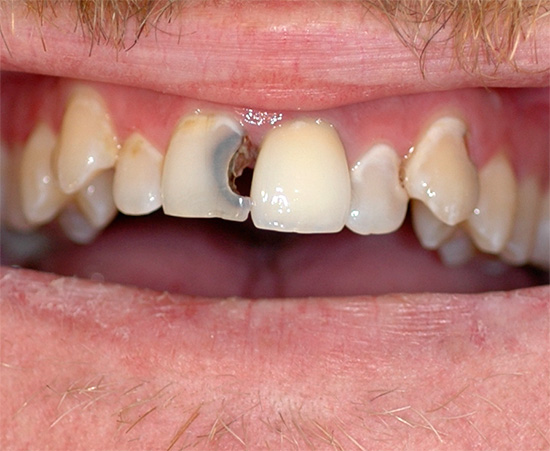 Важно понимать, что если не лечить зубы, а лишь избавляться от боли, то со временем ситуация будет становиться лишь хуже.