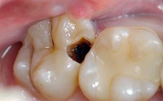 Иногда избавиться от зубной боли в домашних условиях можно с помощью ватки, смоченной, например, раствором Лидокаина и заложенной в кариозную полость.