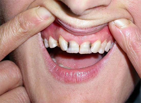 Привычка постоянно глушить зубную боль таблетками обычно ни к чему хорошему не приводит...