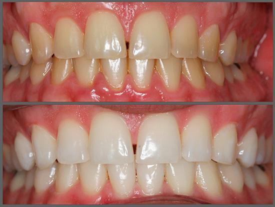 Так выглядят зубы до и после фотоотбеливания.
