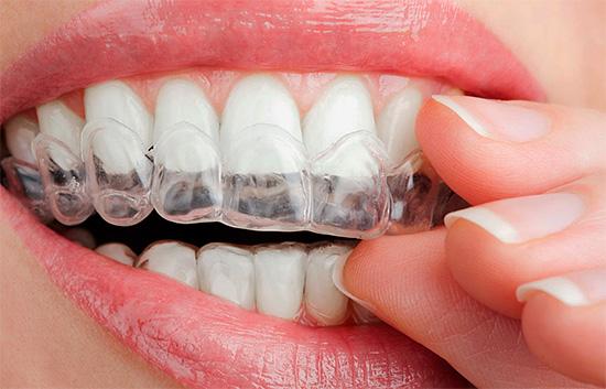 Домашнее отбеливание можно проводить с помощью индивидуальных кап, изготовленных в стоматологической клинике специально для вас.