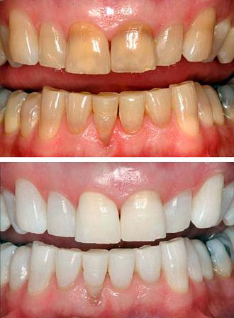 Фотография зубов до и после фотоотбеливания методом Zoom.