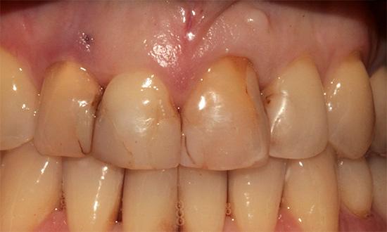 Если на передних зубах имеются пломбы, то после процедуры фотоотбеливания они могут выглядеть темнее окружающей эмали.