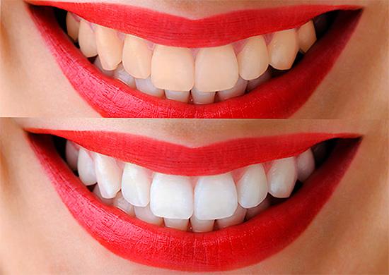 При фотоотбеливании зубов действительно можно за короткий срок осветлить эмаль на 12 и даже более тонов.