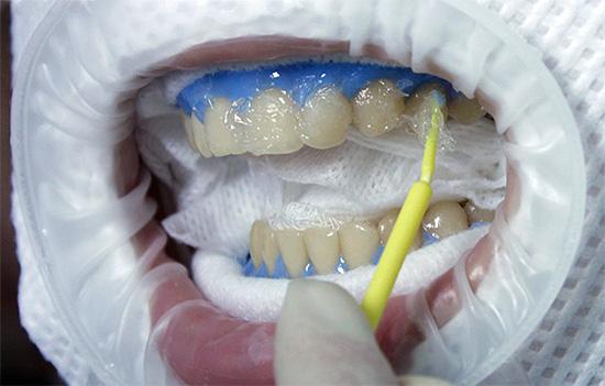 На фотографии показано нанесение отбеливающего геля на поверхность передних зубов.