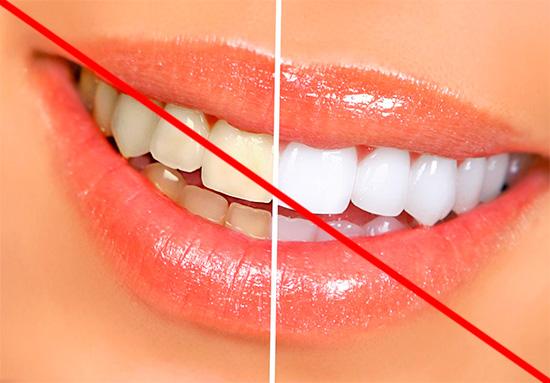 Не стоит ожидать, что отбеливающая зубная паста обеспечит вам белоснежную улыбку, но вот сделать ее чуточку белее способна вполне (правда, не во всех случаях).