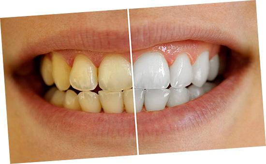 Отбеливание зубов в современной стоматологии