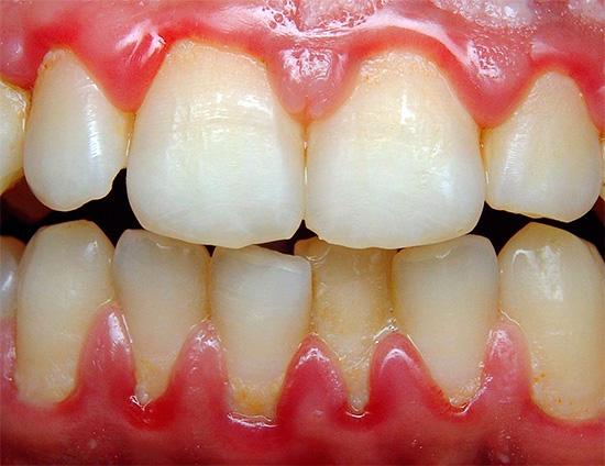 Отбеливания зубов zoom в москве