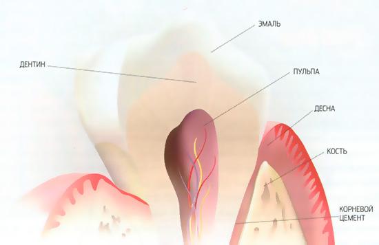 Использование большинства отбеливающих средств способно в той или иной степени нанести вред зубной эмали.
