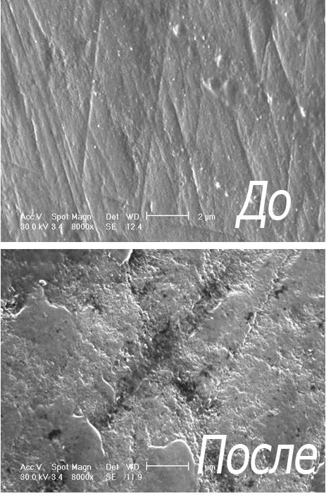 Фотографии зубной эмали под микроскопом до и после отбеливания (с применением геля на основе перекиси водорода и ортофосфорной кислоты).