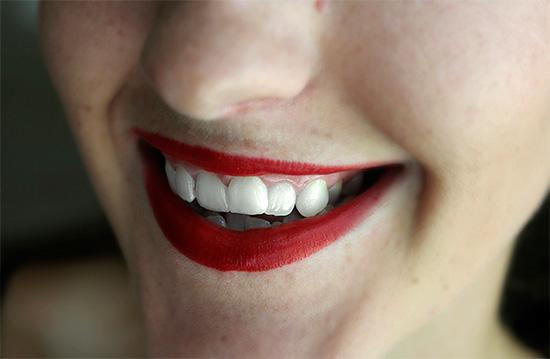 Если покрасить губы яркой красной помадой, то зубы на ее фоне будут выглядеть белее...