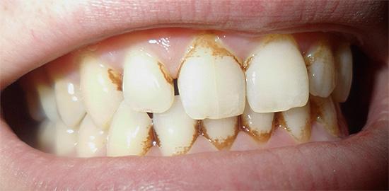 Если вы видите на поверхности эмали обильные зубные отложения, то лучше пройти процедуру профессиональной гигиены полости рта.