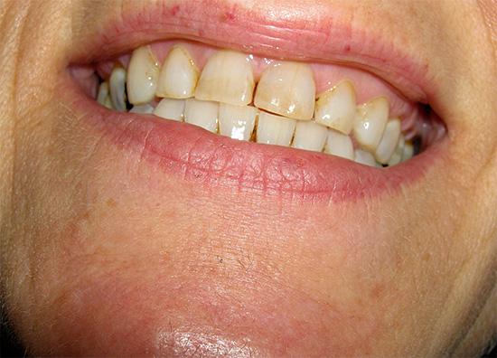 Если зубная эмаль от природы имеет светлый оттенок, то достаточно удалить с нее окрашенный налет, чтобы улыбка вновь стала белоснежной.