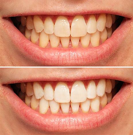 На фотографии показан пример того, как могут выглядеть зубы до и после процедуры фотоотбеливания.