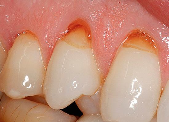 Использование высокоабразивных зубных паст может привести к углублению клиновидных дефектов.