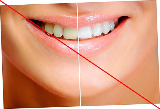 При использовании White & White не стоит ожидать, что ваша улыбка быстро засияет голливудской белизной...