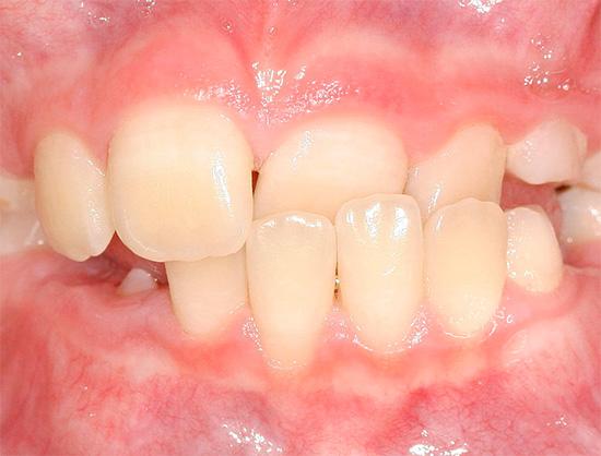 Аномалія прикусу зубів