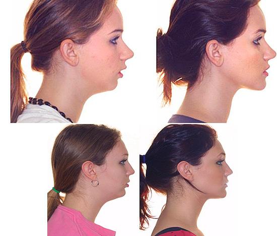 После лечения (коррекции) дистального прикуса форма нижней челюсти претерпевает значительные изменения.