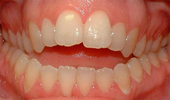 Когда зубы в переднем отделе не смыкаются, говорят об открытом прикусе.