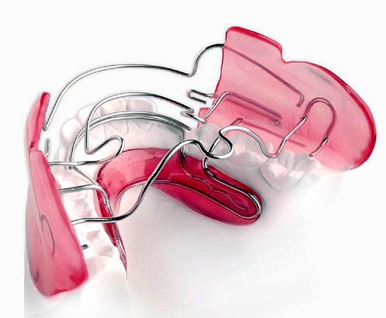 Еще один пример съемного аппарата для лечения аномалий прикуса (регулятор Френкеля).