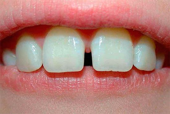 На фото показан пример срединной диастемы.