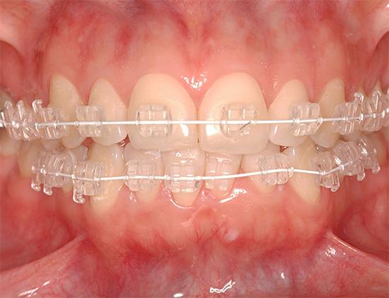 Сапфировые брекеты являются одними из самых незаметных на зубах.
