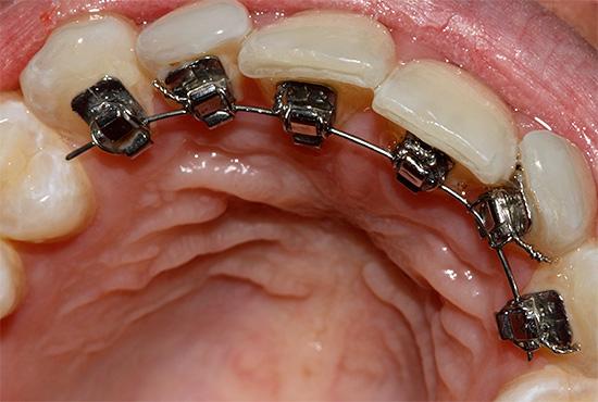 Лингвальные брекеты крепятся с внутренней (язычной) стороны зубов, поэтому незаметны для окружающих.